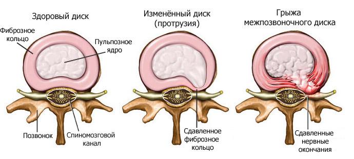 Шейный остеохондроз как помочь при боли