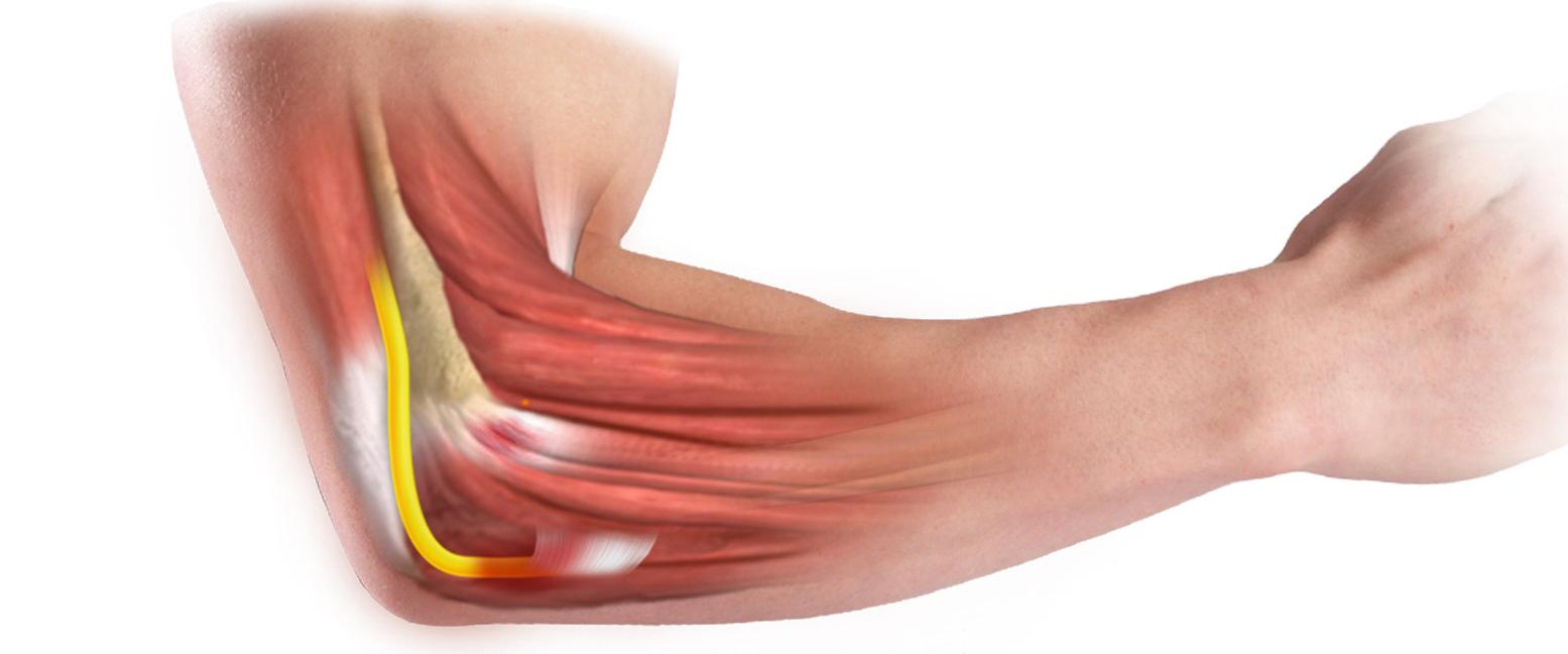 Боль в локтевом суставе при поднятии тяжести, при незначительной нагрузке